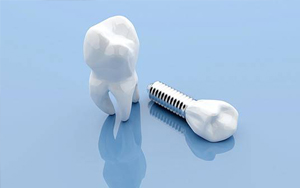 dental crown with implant